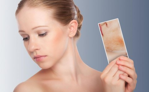How to Treat Different Types of Skin Imperfections Picture