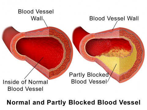 What Causes Ischemic Heart Disease Picture